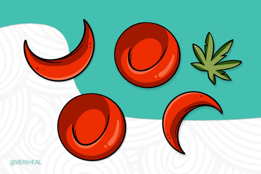 A New Study Shows Cannabis Treatment Potential For Sickle Cell Disease