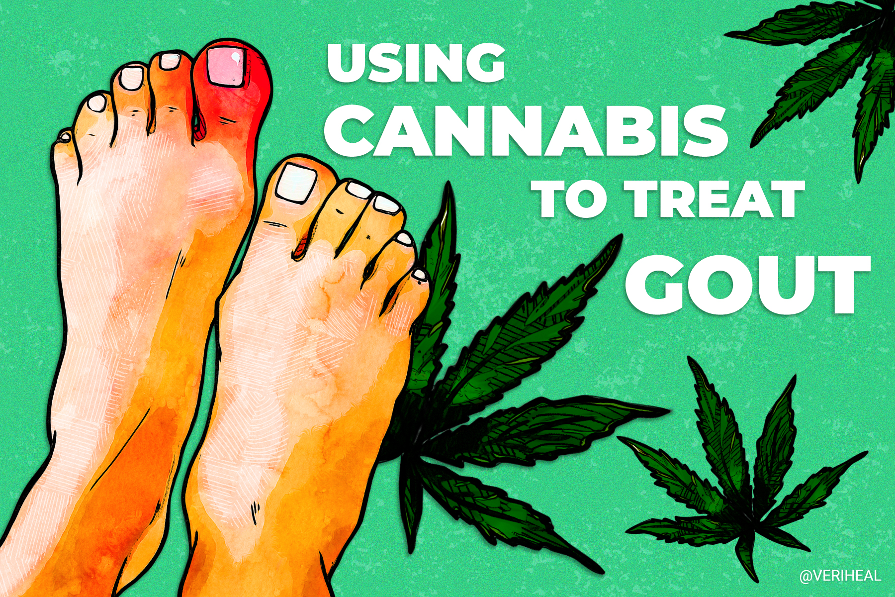 Using Cannabis to Help Treat the Excruciating Symptoms of Gout