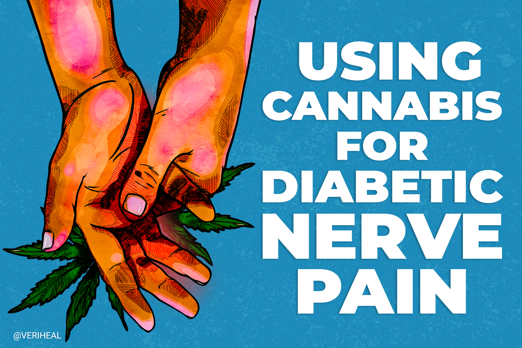 Using Cannabis for Diabetic Nerve Pain